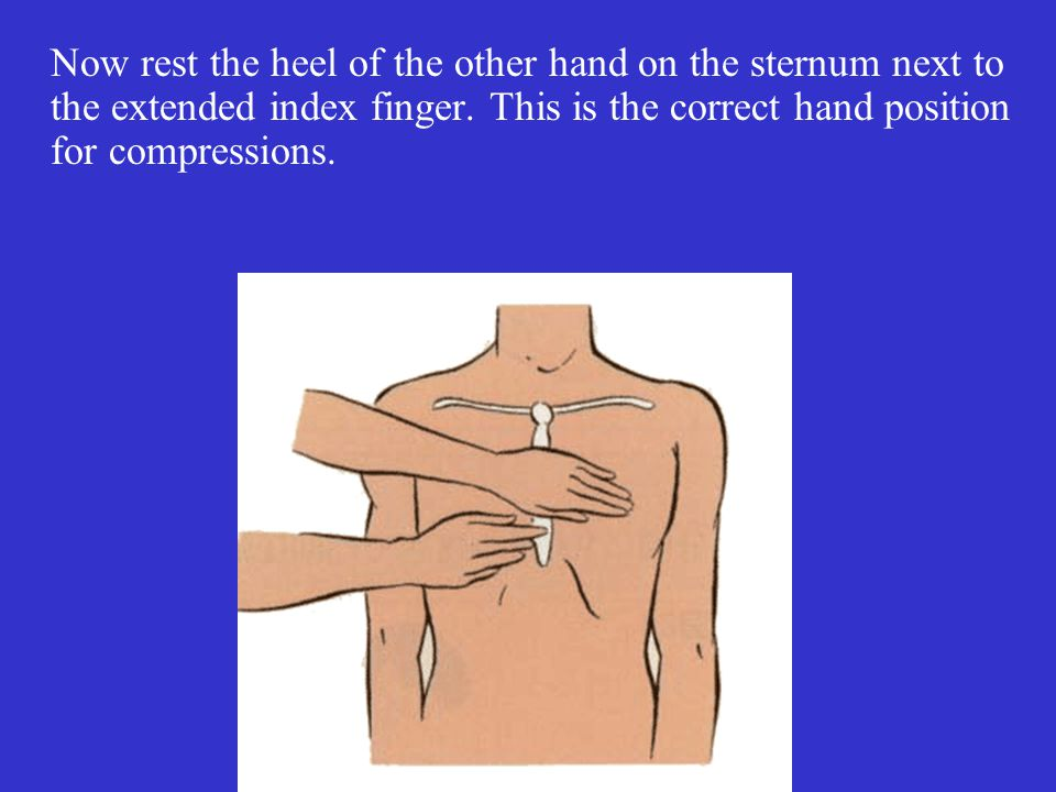 Now rest the heel of the other hand on the sternum next to the extended index finger.
