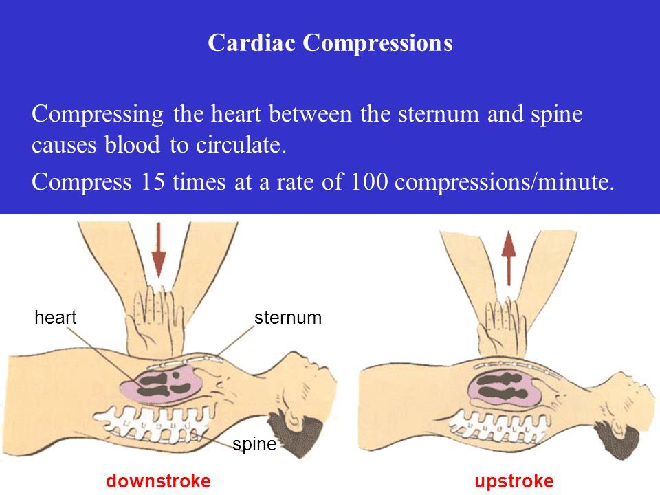 Compress 15 times at a rate of 100 compressions/minute.