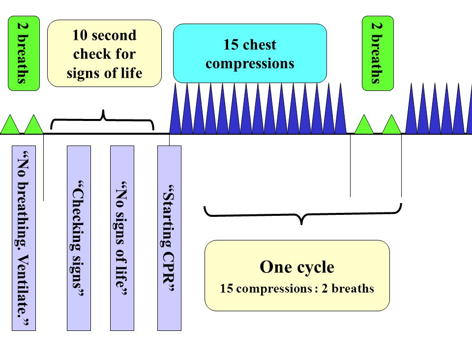 One cycle 10 second check for signs of life 15 chest compressions