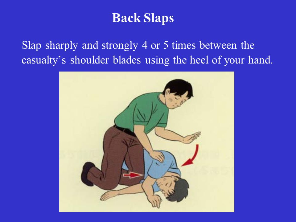 Back Slaps Slap sharply and strongly 4 or 5 times between the casualty's shoulder blades using the heel of your hand.