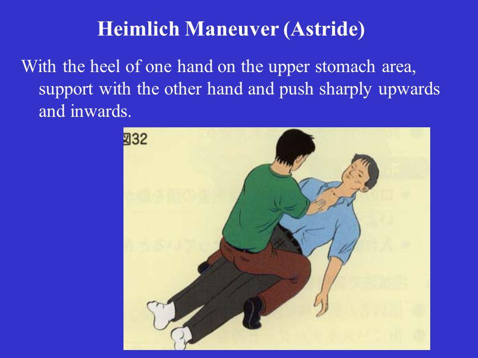 Heimlich Maneuver (Astride)