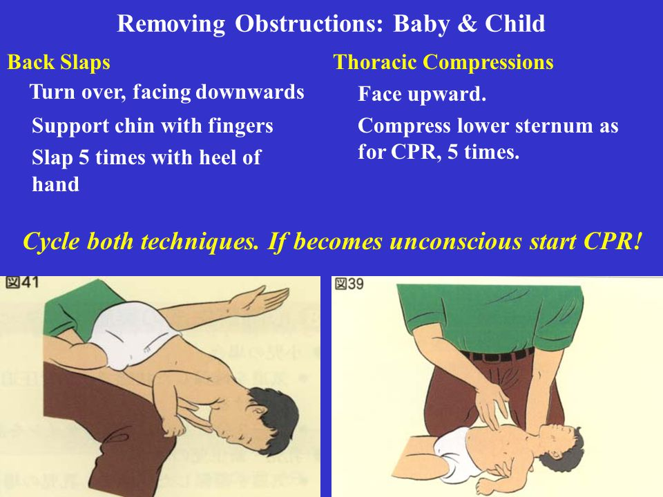 Removing Obstructions: Baby & Child