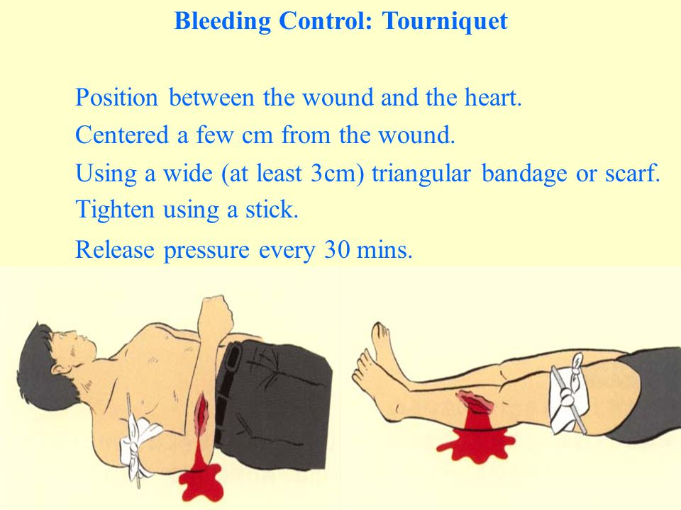 Bleeding Control: Tourniquet