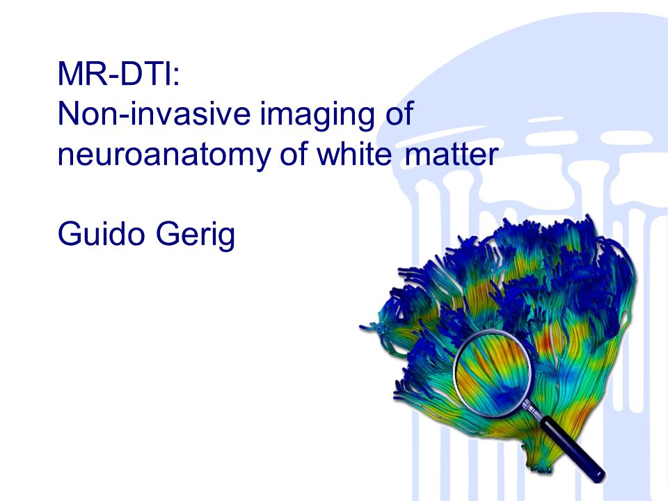 MR-DTI: Non-invasive imaging of neuroanatomy of white matter Guido Gerig