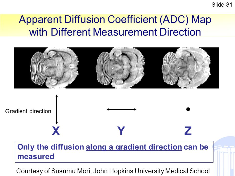 Apparent Diffusion Coefficient (ADC) Map with Different Measurement Direction