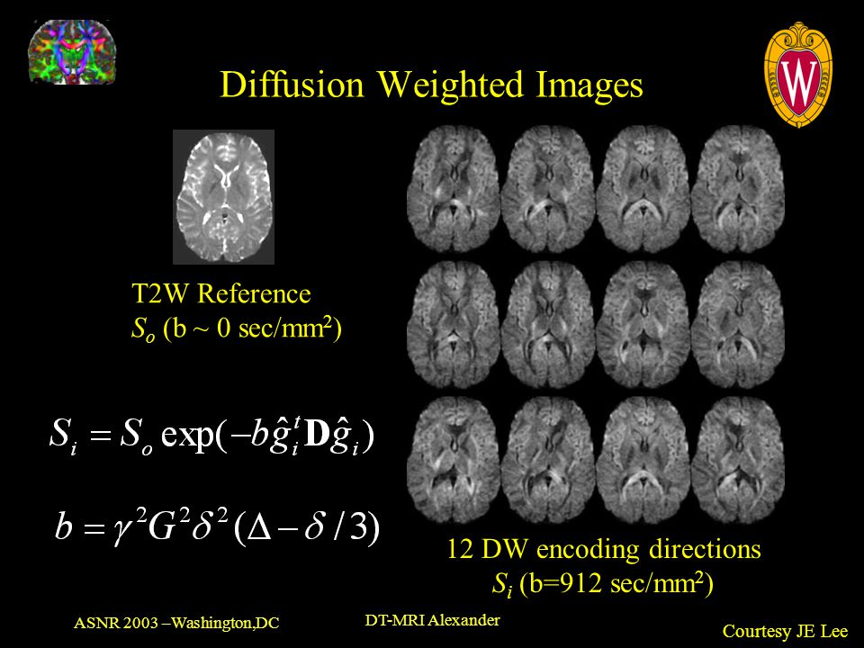 Diffusion Weighted Images