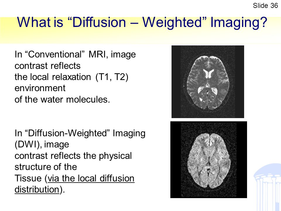 What is Diffusion – Weighted Imaging