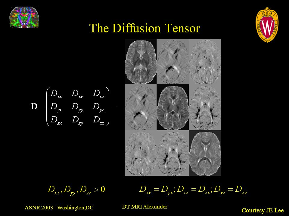 The Diffusion Tensor Courtesy JE Lee ASNR 2003 –Washington,DC