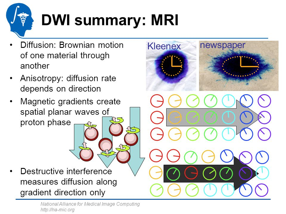 DWI summary: MRI newspaper Kleenex