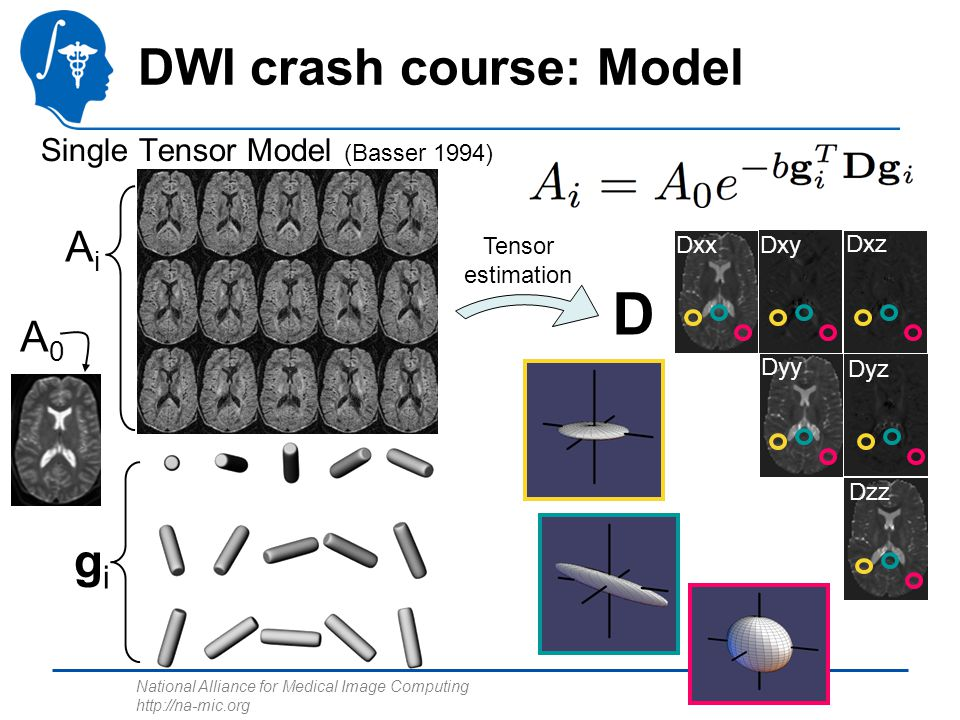 DWI crash course: Model