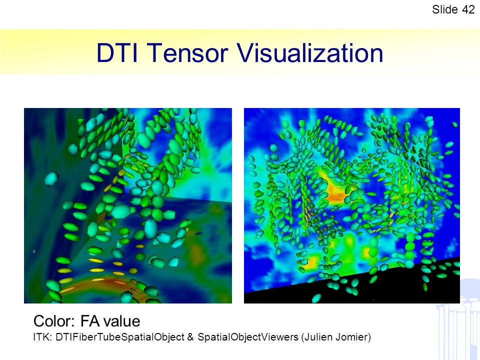 DTI Tensor Visualization