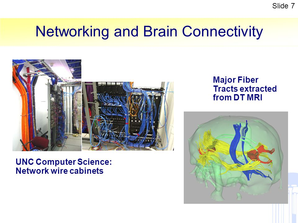 Networking and Brain Connectivity