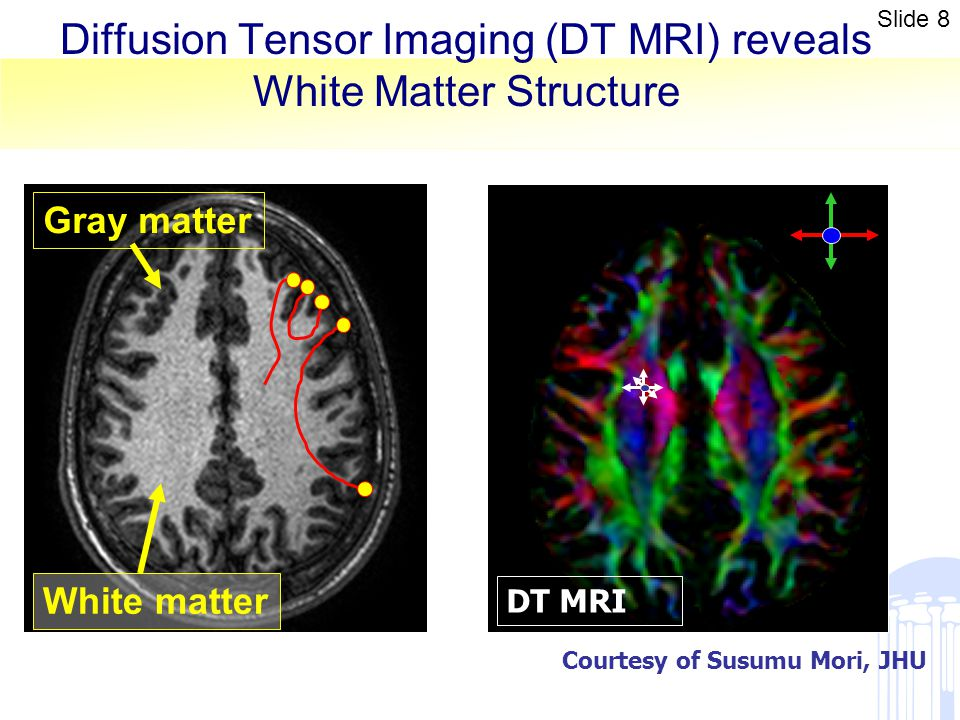 Diffusion Tensor Imaging (DT MRI) reveals White Matter Structure