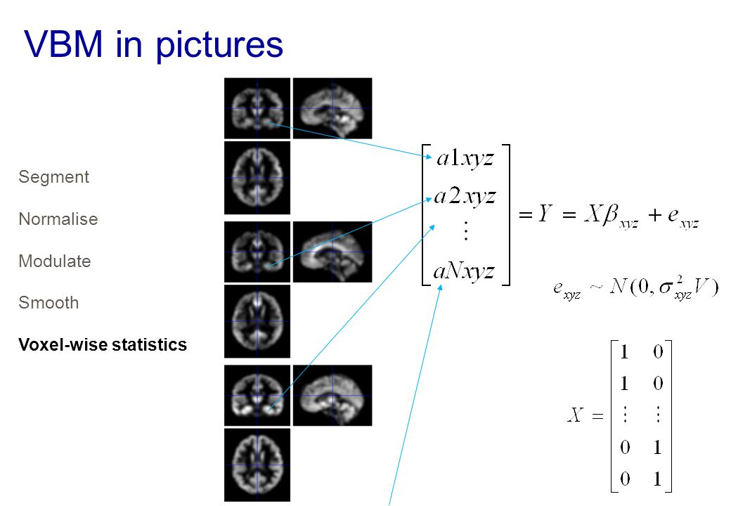 VBM in pictures Segment Normalise Modulate Smooth