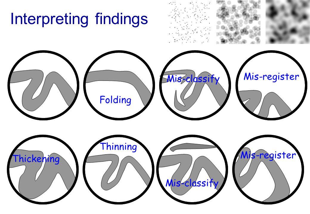 Interpreting findings