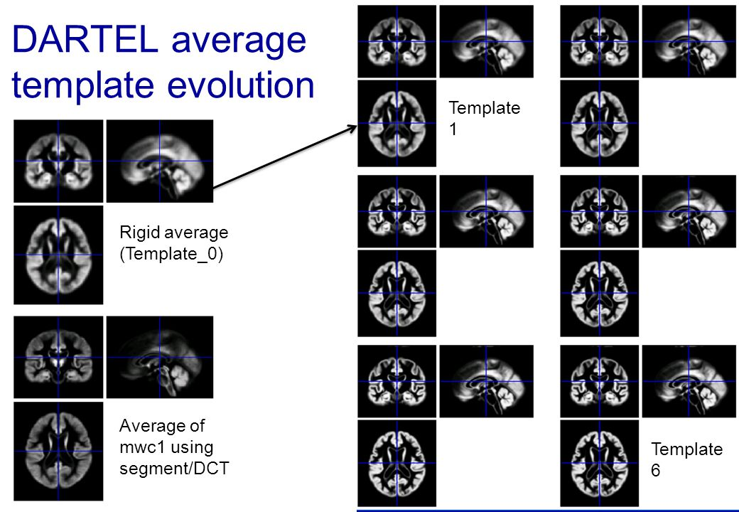 DARTEL average template evolution