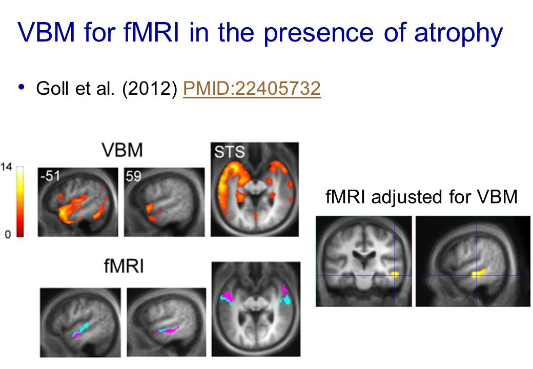 VBM for fMRI in the presence of atrophy