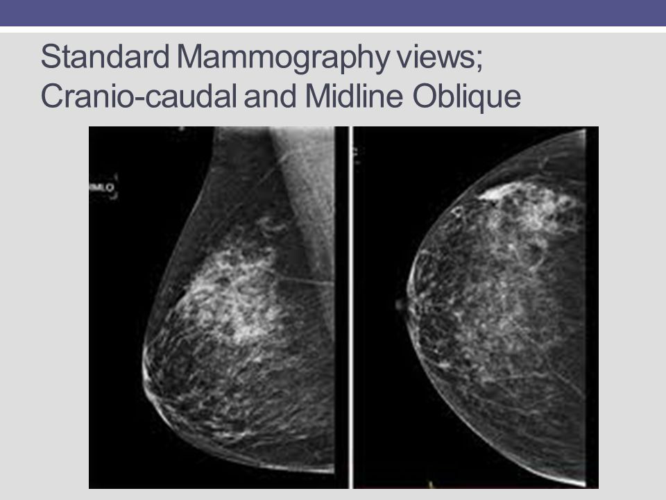 Standard Mammography views; Cranio-caudal and Midline Oblique