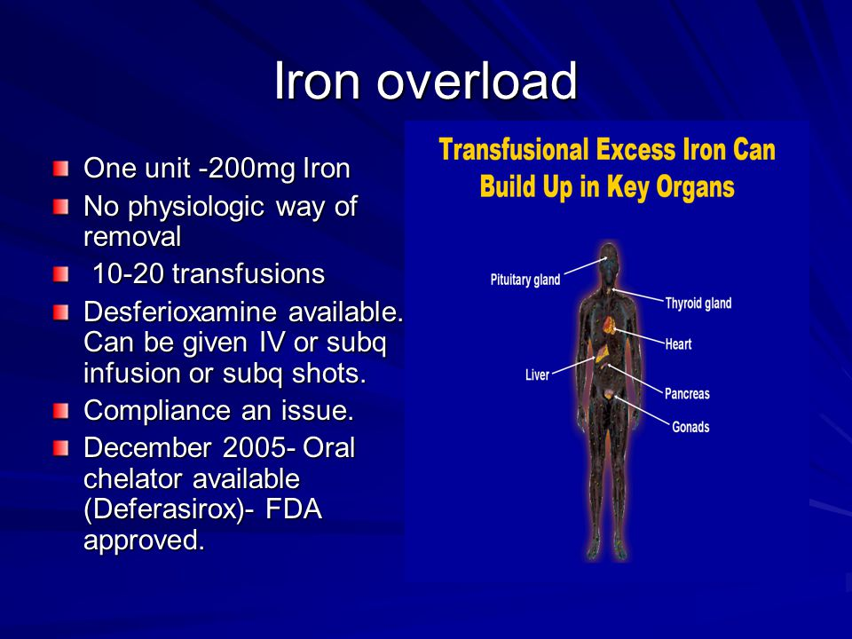 Iron overload One unit -200mg Iron No physiologic way of removal