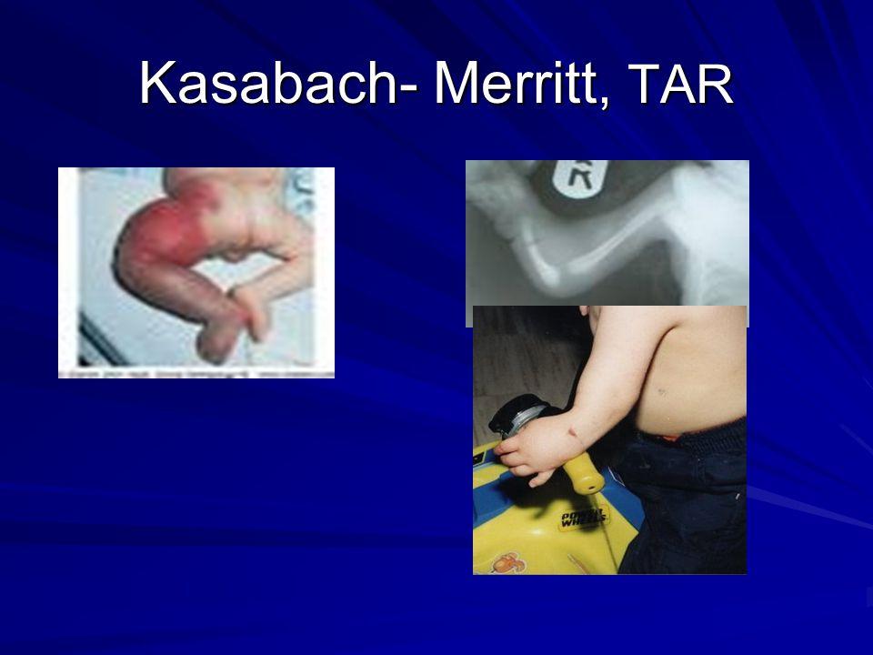 Kasabach- Merritt, TAR