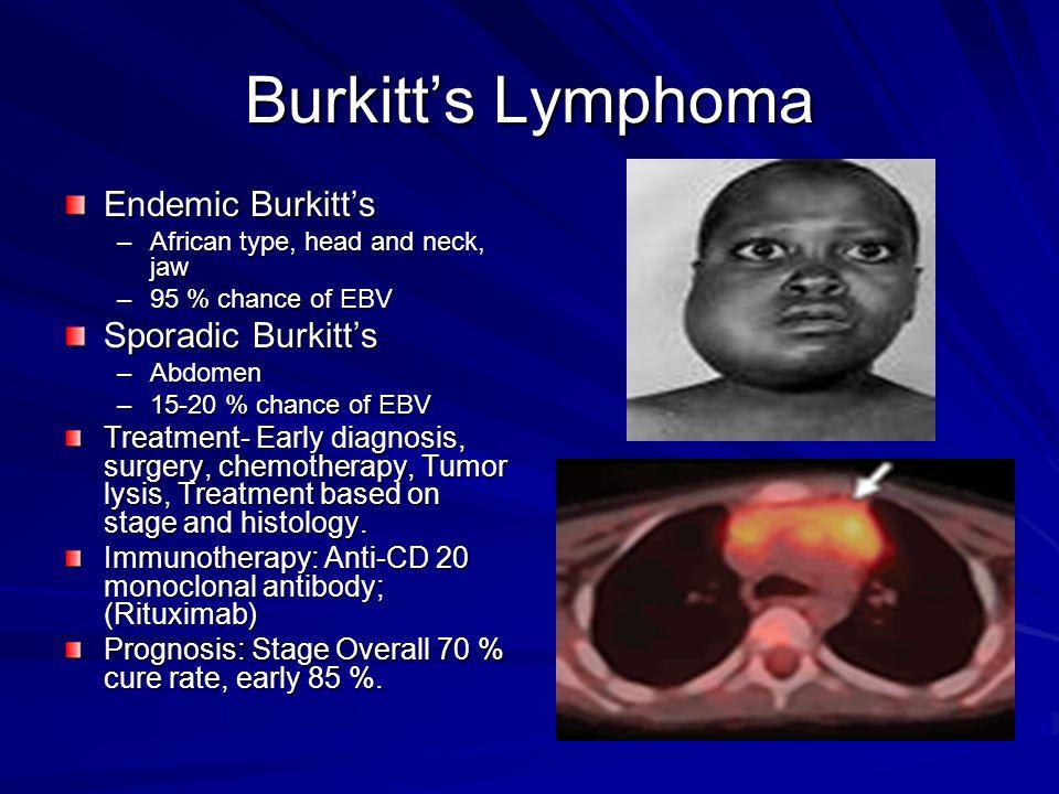 Burkitt's Lymphoma Endemic Burkitt's Sporadic Burkitt's