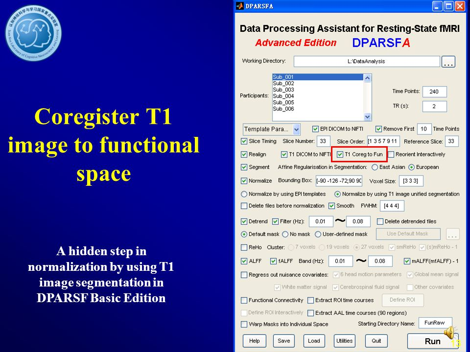 Coregister T1 image to functional space