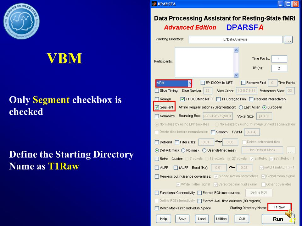 VBM Only Segment checkbox is checked