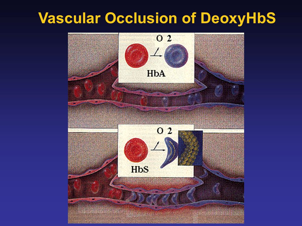 Vascular Occlusion of DeoxyHbS