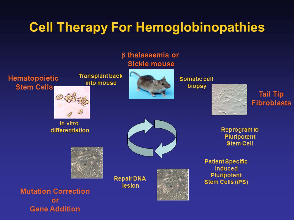 Cell Therapy For Hemoglobinopathies