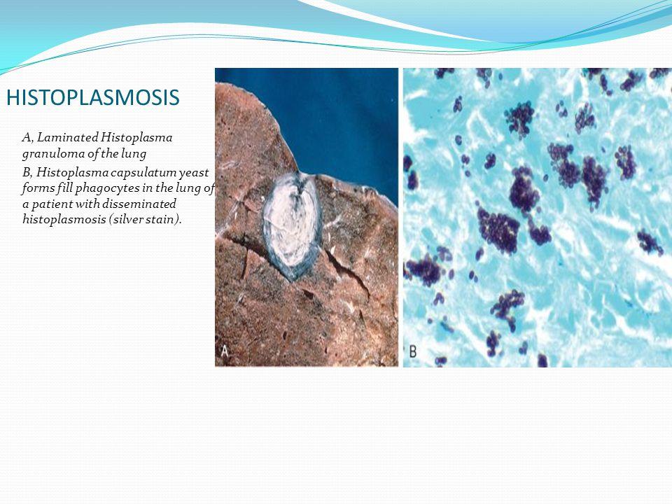 HISTOPLASMOSIS A, Laminated Histoplasma granuloma of the lung