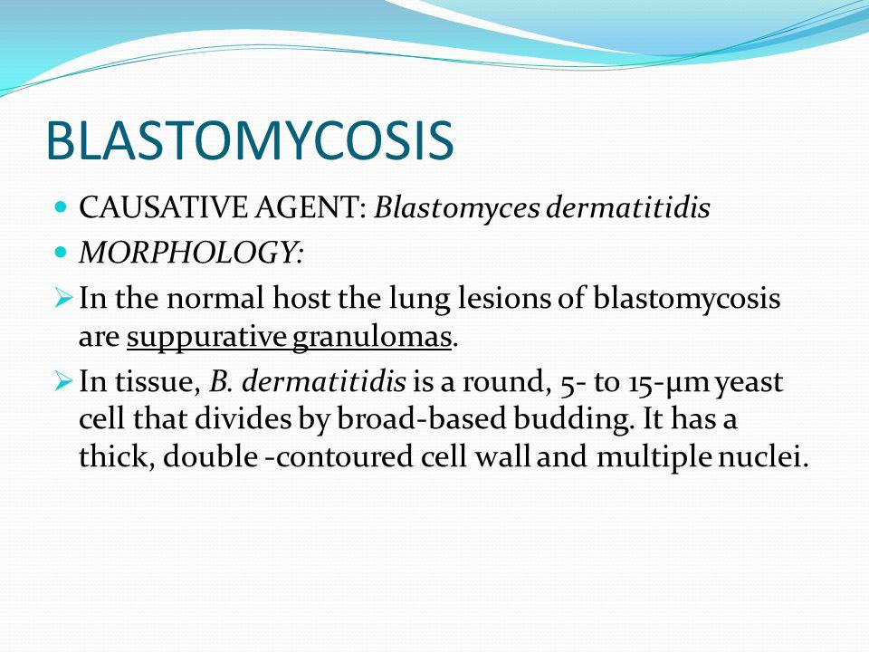 BLASTOMYCOSIS CAUSATIVE AGENT: Blastomyces dermatitidis MORPHOLOGY: