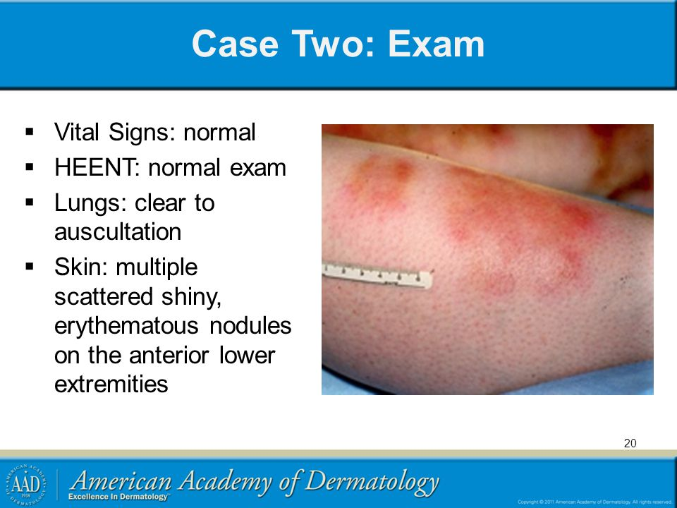 Case Two: Exam Vital Signs: normal HEENT: normal exam