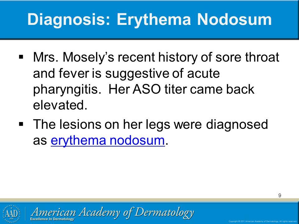 Diagnosis: Erythema Nodosum
