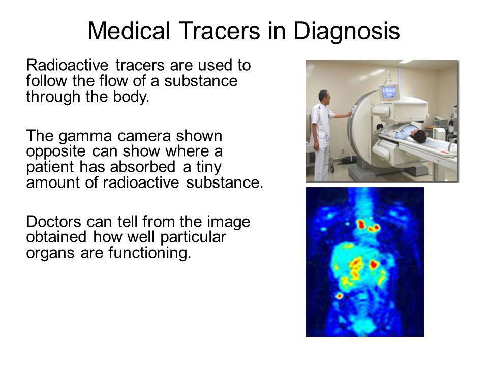 Medical Tracers in Diagnosis
