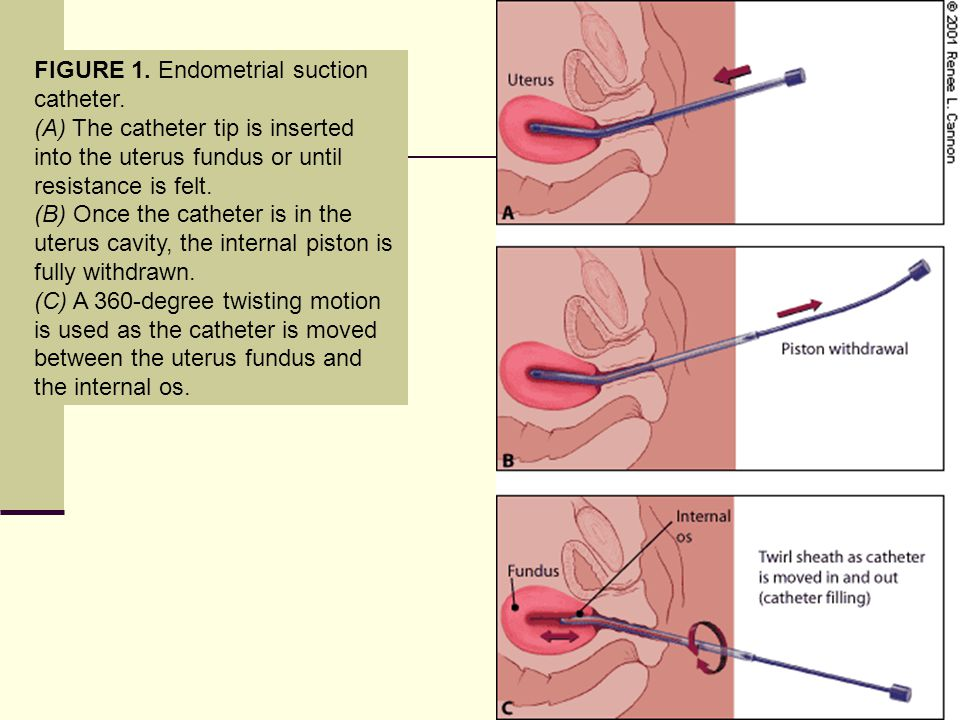 FIGURE 1. Endometrial suction catheter.