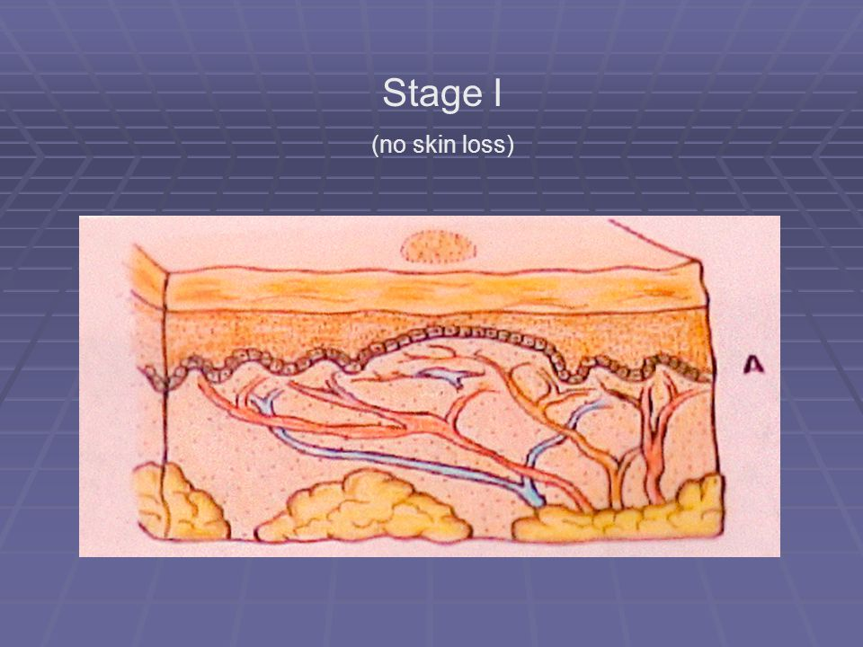 Stage I (no skin loss)