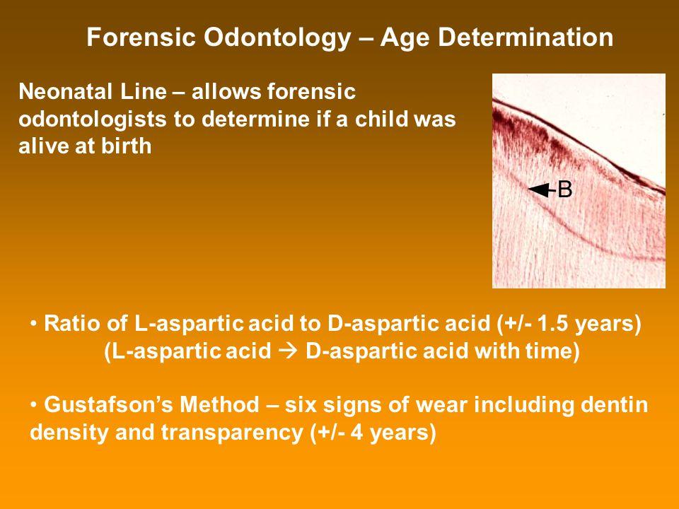 (L-aspartic acid  D-aspartic acid with time)