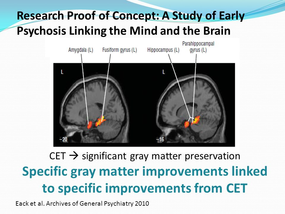 Research Proof of Concept: A Study of Early Psychosis Linking the Mind and the Brain