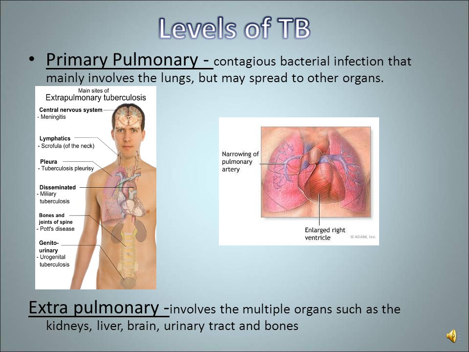 Primary Pulmonary - contagious bacterial infection that mainly involves the lungs, but may spread to other organs.