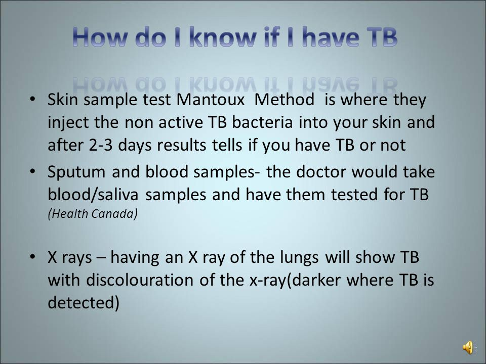 How do I know if I have TB