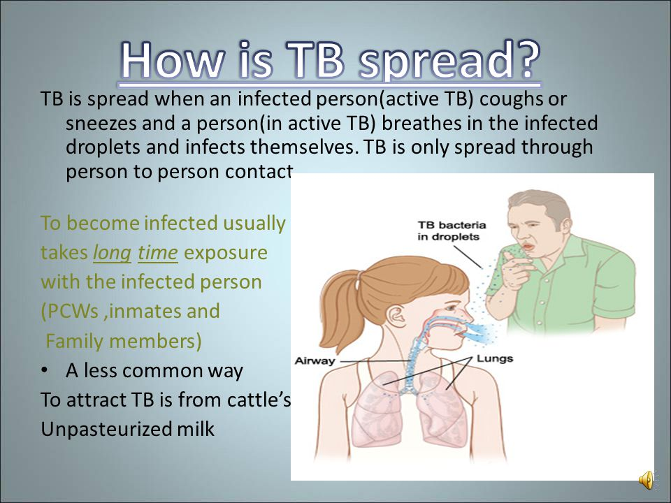 TB is spread when an infected person(active TB) coughs or sneezes and a person(in active TB) breathes in the infected droplets and infects themselves. TB is only spread through person to person contact