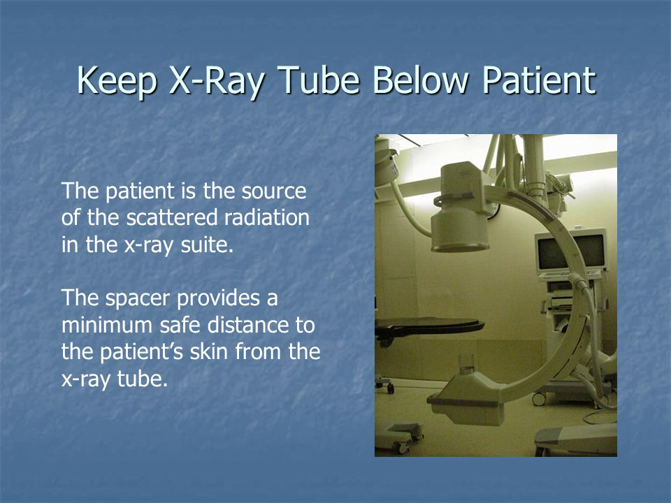 Keep X-Ray Tube Below Patient