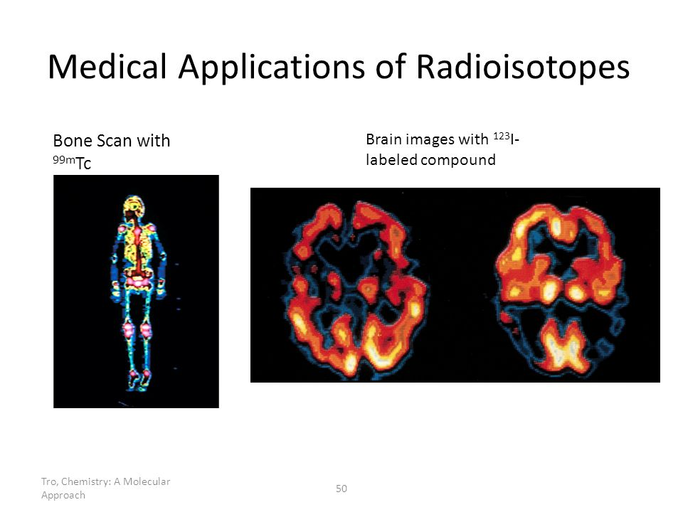 Medical Applications of Radioisotopes