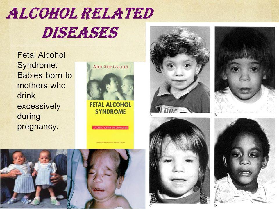 Alcohol Related Diseases