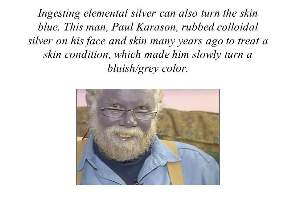 Ingesting elemental silver can also turn the skin blue