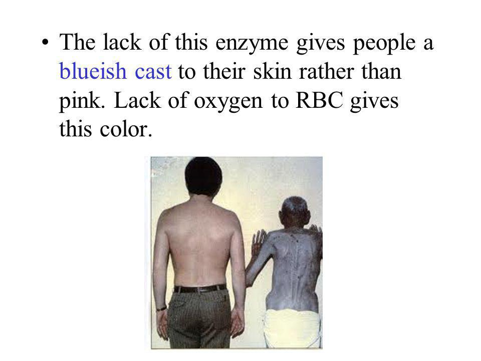 The lack of this enzyme gives people a blueish cast to their skin rather than pink.