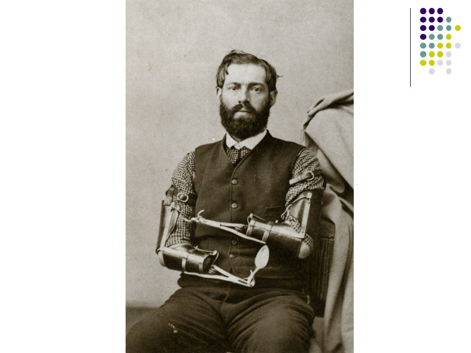 The prevalence of amputation during the Civil War created a need for prosthetic devices.