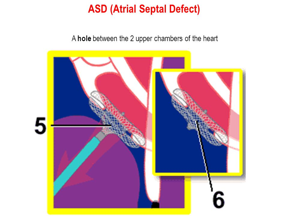 ASD (Atrial Septal Defect)