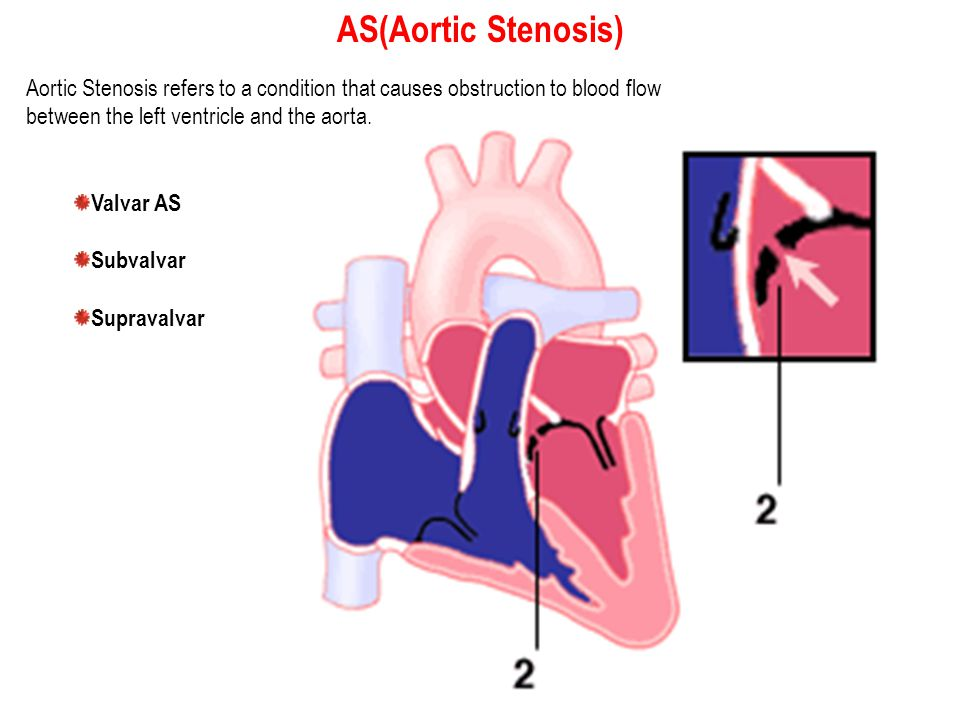 AS(Aortic Stenosis) Aortic Stenosis refers to a condition that causes obstruction to blood flow. between the left ventricle and the aorta.