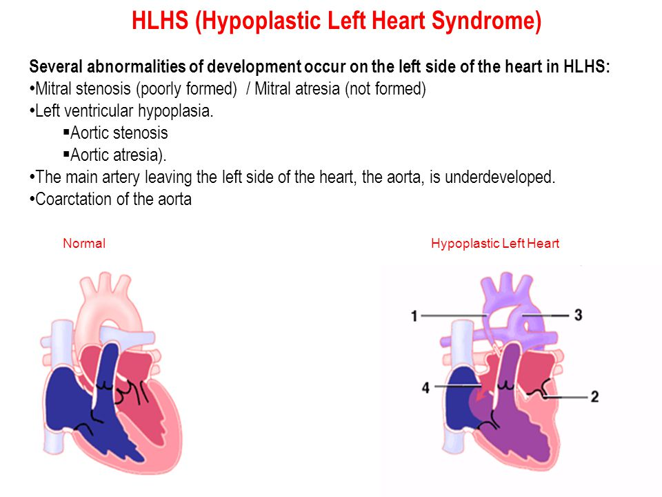 HLHS (Hypoplastic Left Heart Syndrome)